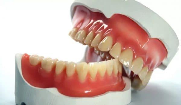 Бесплатное протезирование зубов доступно по полису ОМС