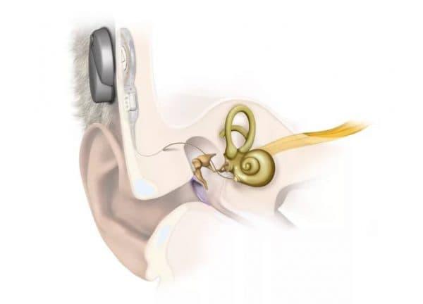 Слуховой имплант и МРТ